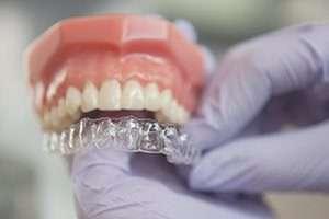 Calgary Invisalign dentist showing aligner tray
