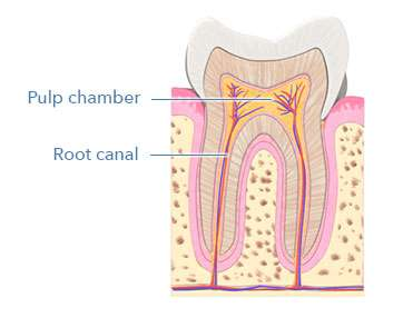diagram showing the root canal of a tooth